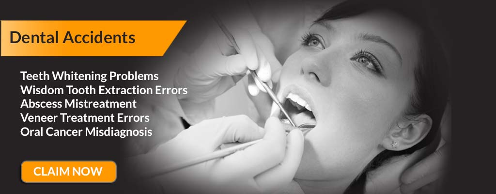Claim for dental compensation with no-win no-fee dental negligence solicitors.